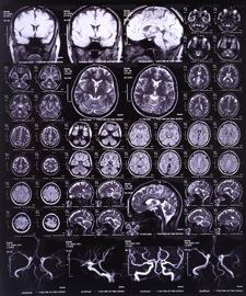 brain_injury.jpg